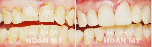 Chỉ định hàn trám răng Laser Tech trong những trường hợp nào? 4