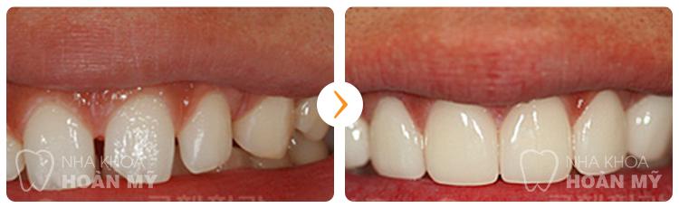 Hàn răng bị sứt có gây đau nhức nhiều hay không?
