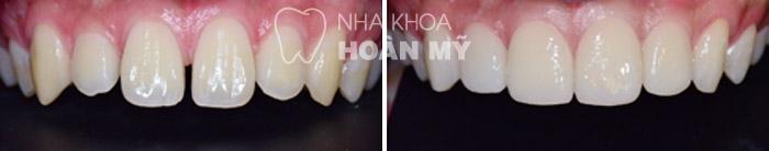 Để đóng kẽ răng thưa có nên hàn răng thẩm mỹ không ?