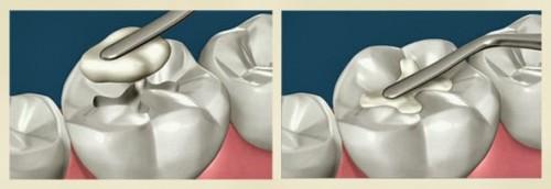 Tại sao phải hàn răng khi răng bị sâu?