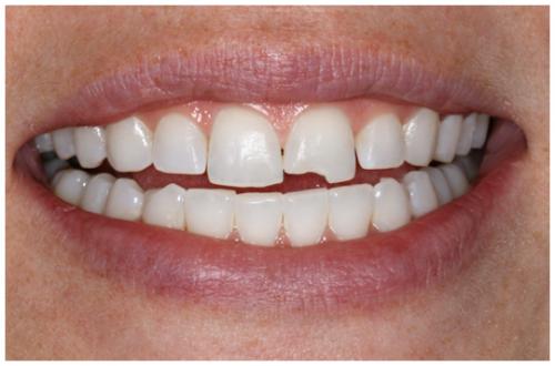 Nguyên nhân răng bị mẻ - Cách chữa NHANH CHÓNG & HIỆU QUẢ 1