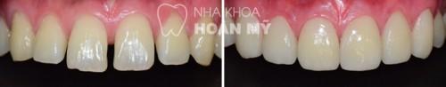 Hàn răng thưa bằng Composite có bền chắc không?5
