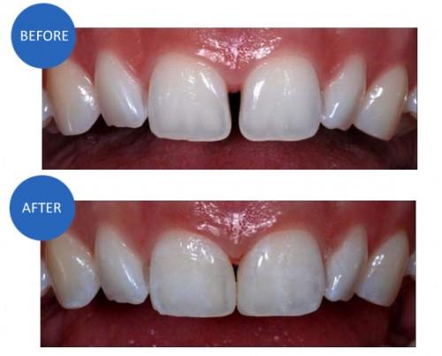 Răng xấu phải làm sao cho đều và đẹp nhất? Cách tiết kiệm chi phí 2