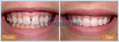 Răng xấu phải làm sao đề đều đẹp nhanh nhất?7