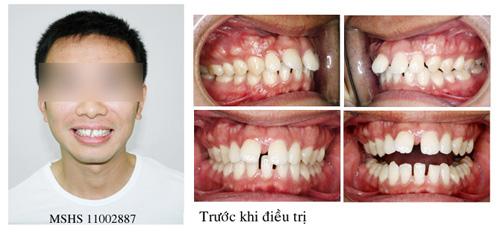 Răng xấu phải làm sao cho đều và đẹp nhất? Cách tiết kiệm chi phí 1