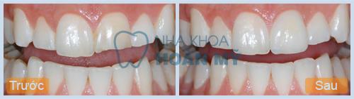 Trám hai răng cửa bị hở giữ được bao lâu?