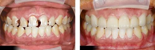 Trám răng cửa bị sâu có đau không? Chuyên gia tư vấn