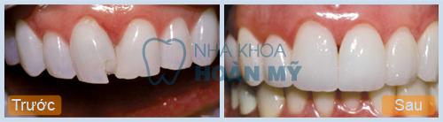 Cách chữa răng bị mẻ bằng hàn trám có đau hay không?