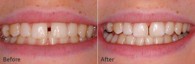 Khi hàn răng bằng Composite có bền không ?