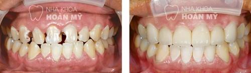 Chỉ định hàn trám răng Laser Tech trong những trường hợp nào?