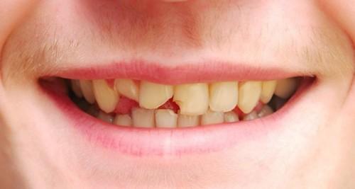 Vì sao răng bị mẻ vỡ và gây ê nhức? 1