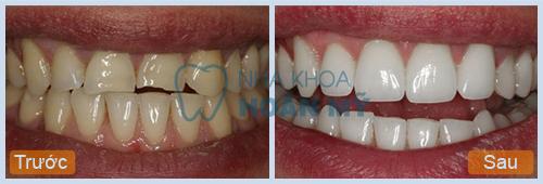 Vì sao răng bị mẻ vỡ và gây ê nhức? 2