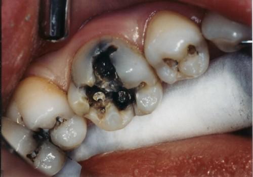 Khi nào bạn cần phải hàn trám răng? 1