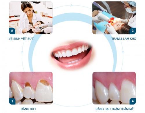 Trám răng có hại đối với sức khỏe hay không? 2