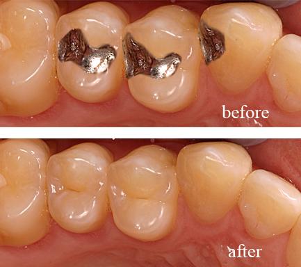 Trám răng có hại đối với sức khỏe hay không? 1