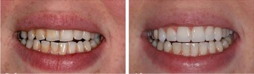 Bạn cần lưu ý những gì khi hàn trám răng? 3