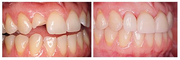 Có NÊN hàn răng bị mẻ nhiều hay KHÔNG NÊN? [BÁC SĨ tư vấn] 2