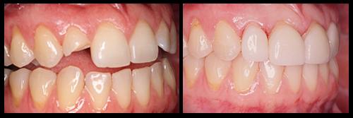 Một số điều bạn cần biết khi đi hàn trám răng? 1
