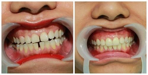 Nguyên nhân nào dẫn tới tình trạng răng bị thưa? 2