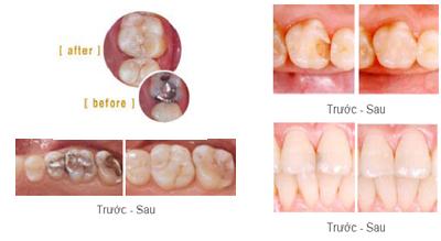 Những điều cần biết khi trám răng để phục hình hiệu quả 14