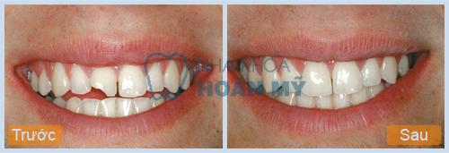 Trám răng có hại đến men răng hay không? 1