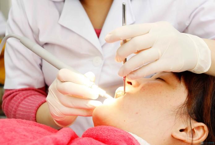 Cách nào làm hết nhức răng sau khi trám? 3