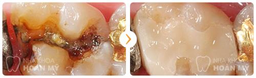 Hàn răng sâu phải mất bao nhiêu thời gian ?