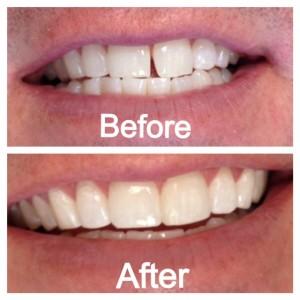 Nên trám răng cửa bị thưa hay bọc sứ thì tốt hơn?