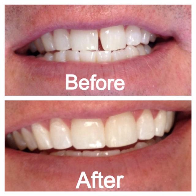 Một số câu hỏi thường gặp về hàn trám răng 2