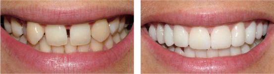 Trám răng bị thưa - những điều cần biết 3