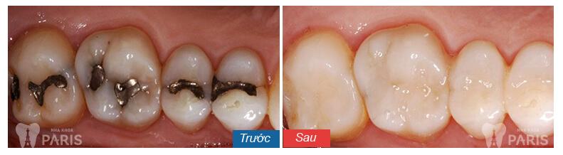 Thời gian hàn răng sâu mất bao lâu thì hoàn thành? 3