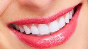 Trám khe răng thưa mất thời gian bao lâu thì HOÀN THÀNH? 1