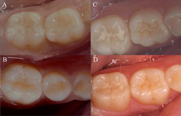Khi trám răng có cần thiết phải lấy tủy không? 1