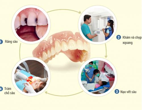 Những điều bạn cần lưu ý khi hàn răng sâu được bác sĩ chỉ định 1