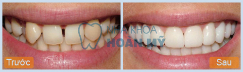 Tại sao nên lựa chọn trám composite cho răng cửa? 1
