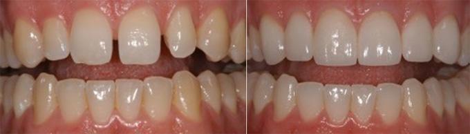 Tại sao nên lựa chọn trám composite cho răng cửa? 3