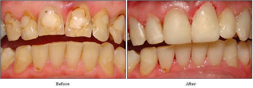 Trám răng bị mòn men có hiệu quả hay không?
