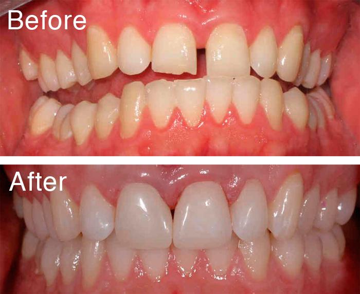 Trám thẩm mỹ răng thưa được thực hiện như thế nào? 2