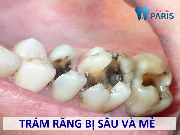 Trám răng sâu và mẻ bằng kĩ thuật nào TỐT và HIỆU QUẢ NHẤT 1