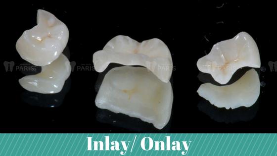 Trám răng sâu và mẻ bằng kĩ thuật nào TỐT và HIỆU QUẢ NHẤT 3