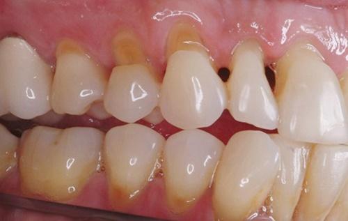 Mòn cổ răng có thể khắc phục bằng hàn trám được không?