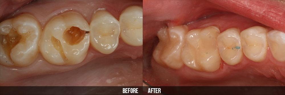 Trám Inlay/Onlay cho răng hàm bị sâu có bền không?
