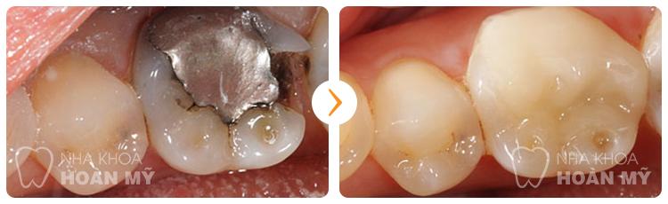 Trám răng sâu có mang lại hiệu quả vĩnh viễn hay không?