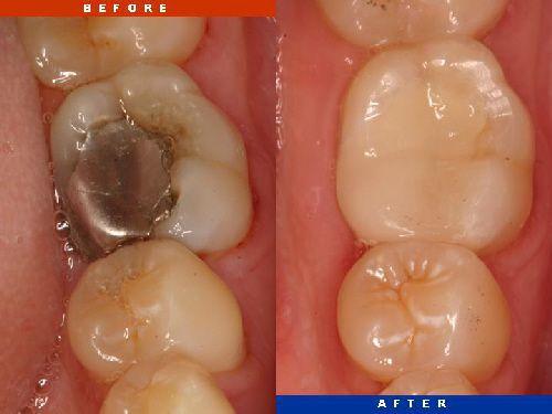[Chia sẻ] Hàn răng sâu vĩnh viễn bằng cách nào tốt nhất? 1