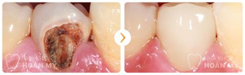 Hàn cổ chân răng có bền không, chi phí thế nào 2