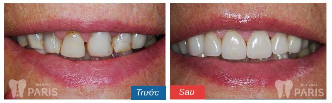 Tại sao lại bị tê buốt răng sau khi đánh răng với chanh?