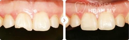 Bị mẻ răng phải làm sao để tự phục hồi được như ban đầu 2