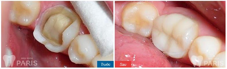 Trám răng xong bị đau có sao không?