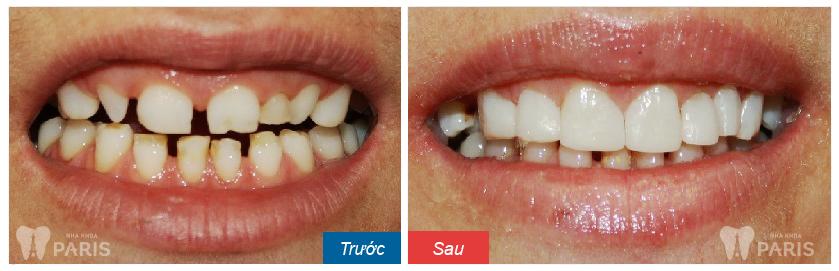 Cách gia tăng hiệu quả cho kỹ thuật hàn răng bằng composite 2