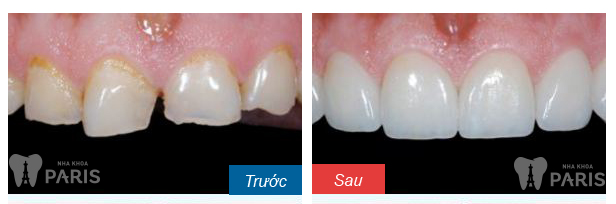 Cách gia tăng hiệu quả cho kỹ thuật hàn răng bằng composite 3